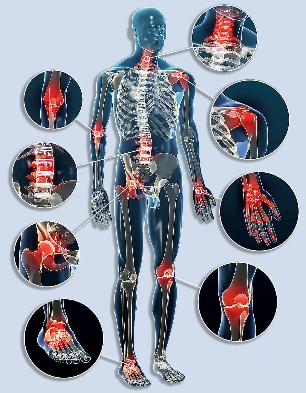 ízületi fájdalom a lábujjkezelés során