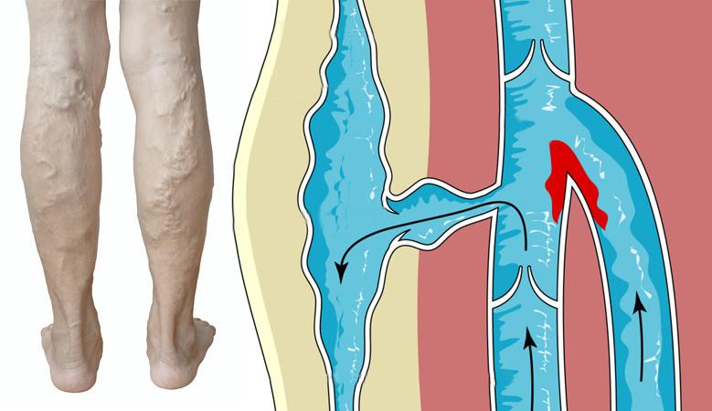 a lábak ízületei stroke után fájnak