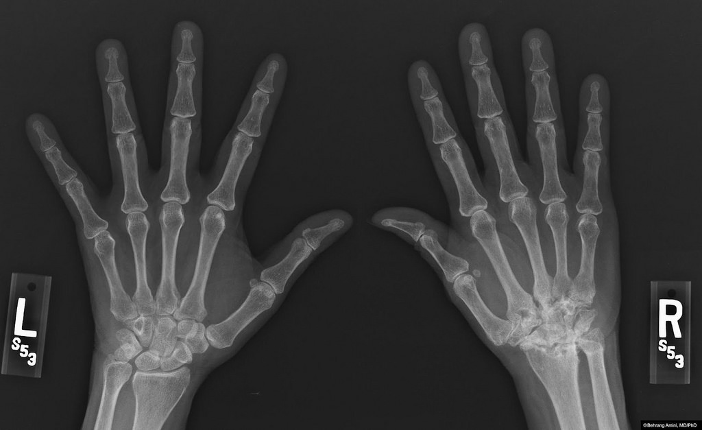 gyógyszerek artritisz arthrosis kezelésére az artrózis kezelése a karon