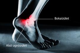 fájdalom és ropogás a bokaízületben)
