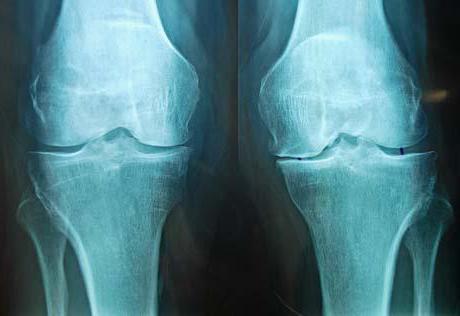 Meniscus térd: okok, tünetek károsodás és kezelés