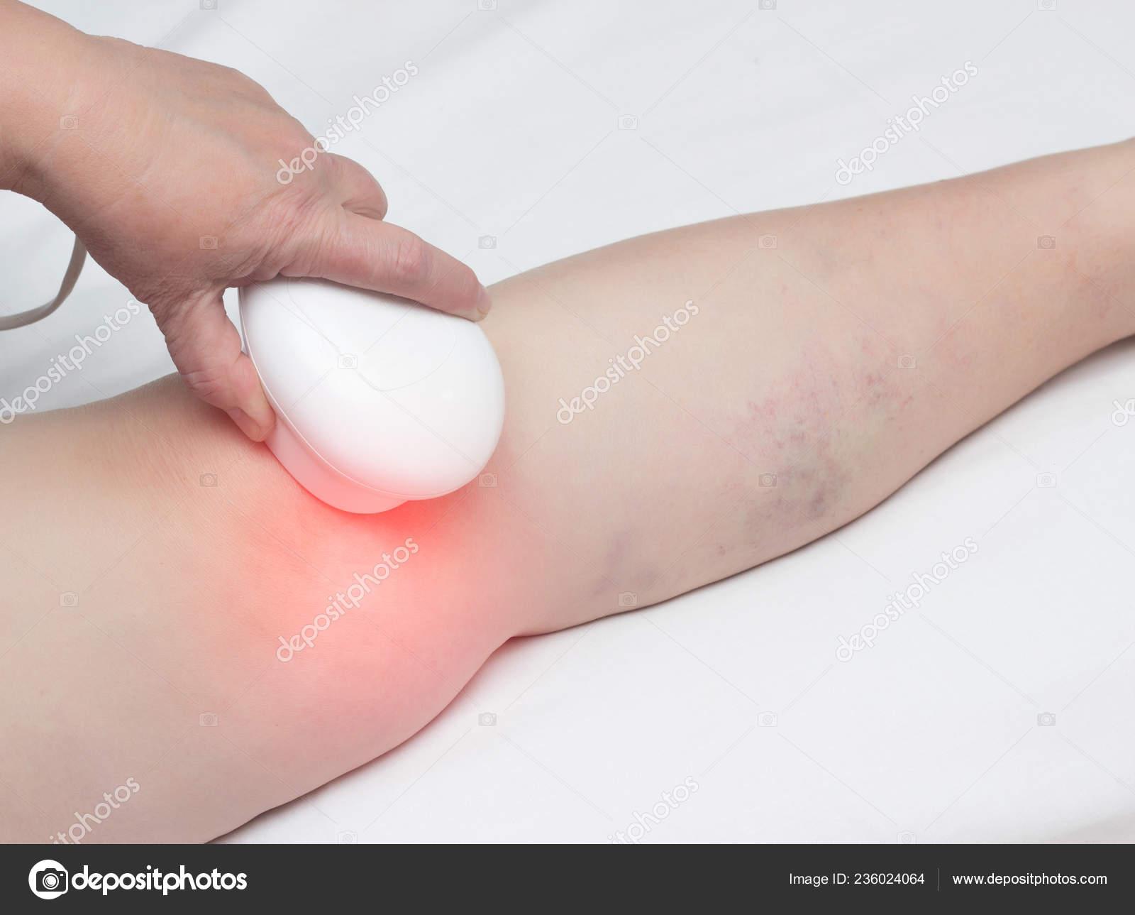 Hogyan lehet enyhíteni a hüvelykujj ízületének fájdalmát