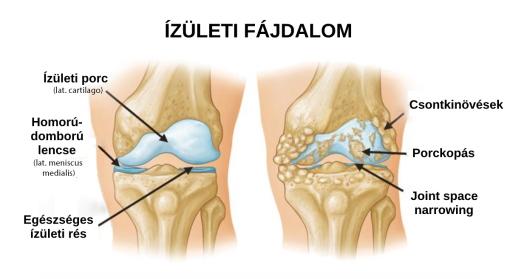 modern gyógymódok ízületi fájdalmakhoz)