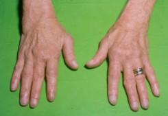 ii. fokú hatékony kezelés artrózisa réz-szulfát ízületi kezelés