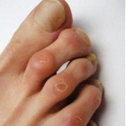 a nagy lábujj gyulladt ízületének kezelése