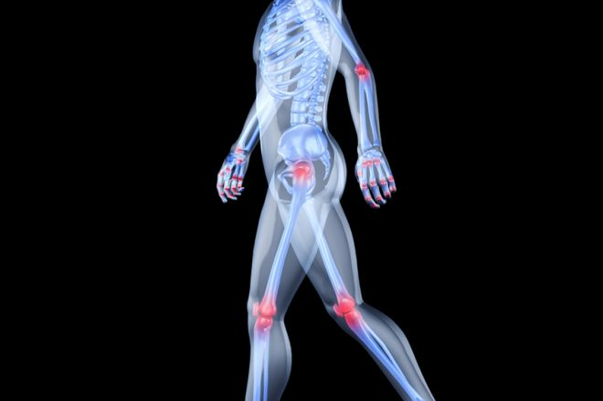 Az artrózis, az ízületi gyulladás és az osteoporosis közötti különbség - Hormonok July