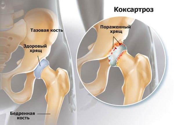 csípőízületi kezelés coxarthrosisának súlyosbodása