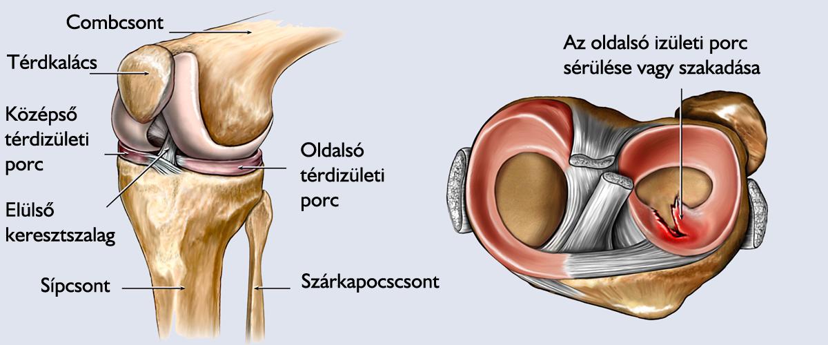 artroszkópos térd helyreállítás)