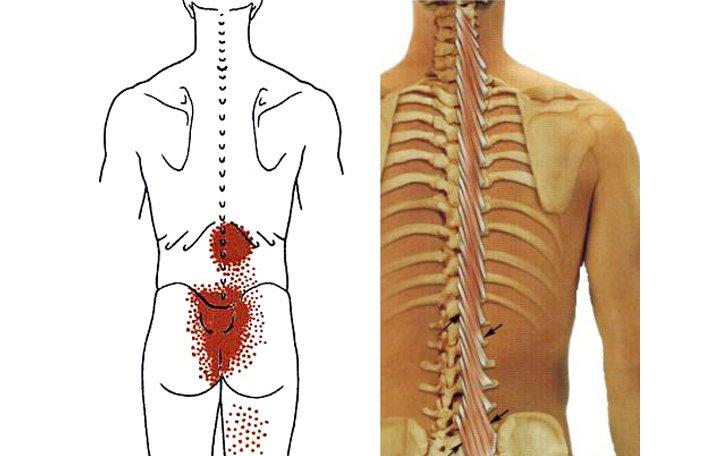 fájdalom a mellkasi gerinc ízületeiben
