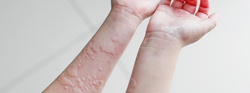 duzzadt kezek és arc a könyökízület kezelésének szubluxálása
