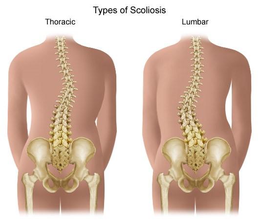 ahol a gerinc artrózisát lehet kezelni