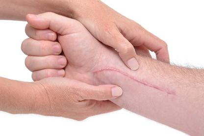 arthrosis ayurveda kezelés)