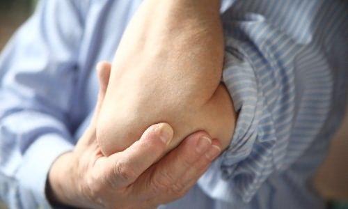 tükröződött könyökfájdalomkezelés brachialis artrózis kezelésére szolgáló készítmények