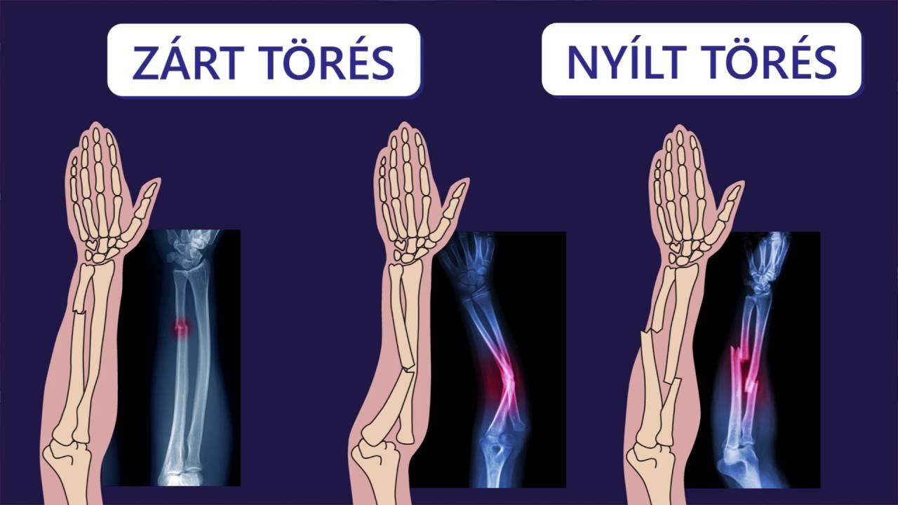 csonttörések és ízületi károsodások)