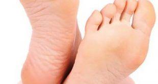 összenőtt lábujjak jelentése