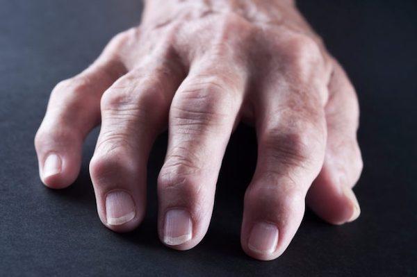 ízületi gyulladás esetén a kéz zsibbadni kezd reumás fájdalom lelki okai