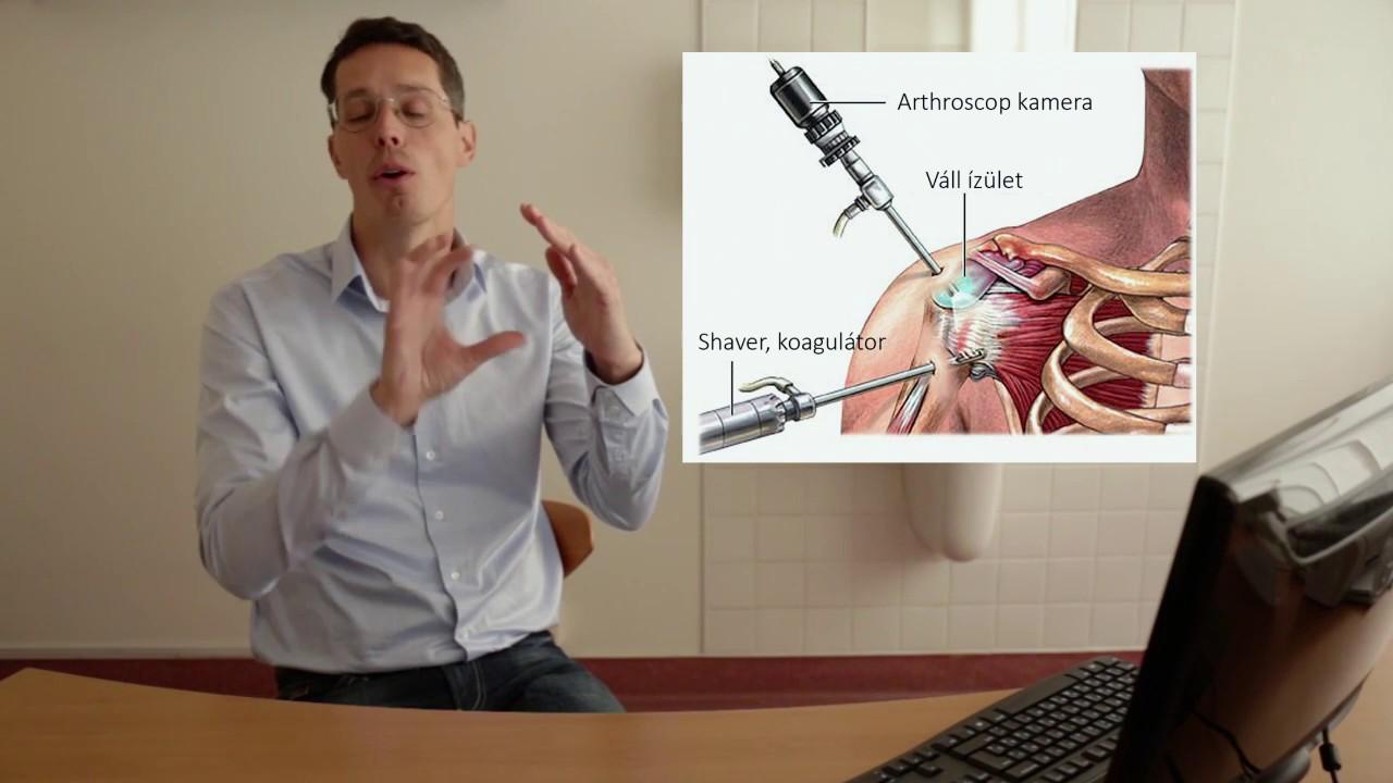 a nyaki és a vállízület ízületi gyulladása