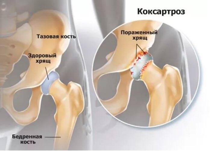 A Rotátor-köpeny sérülése éjjeli vállfájdalmat okozhat - Váll fájdalom okoz fórum