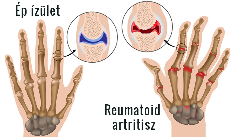 térd tünetek polyarthritis és kezelése)