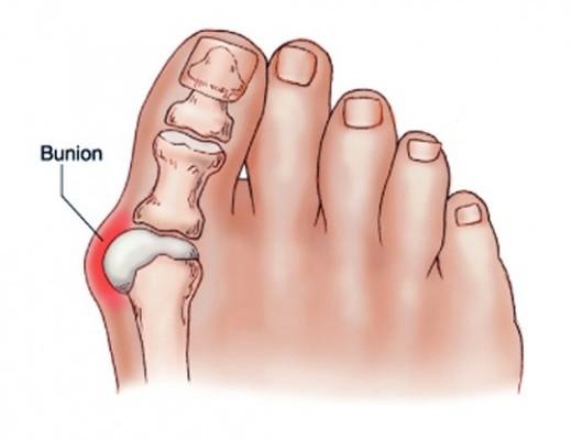 fájdalom kezelése a nagy lábujjak ízületeiben