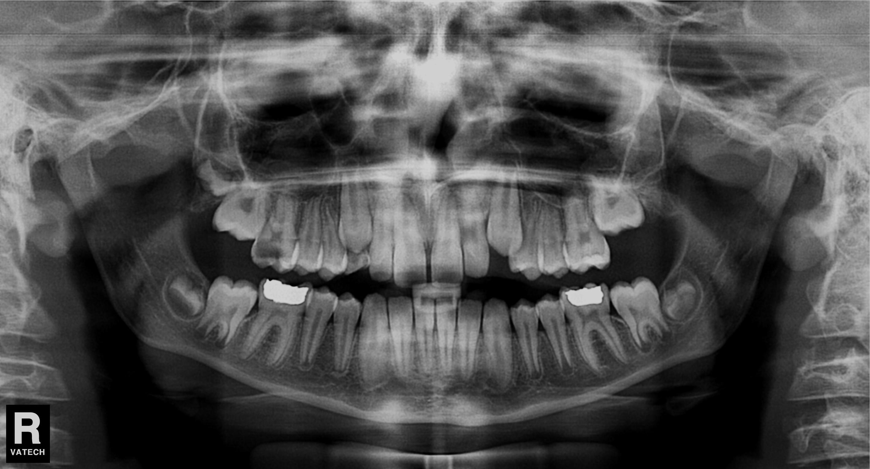 ízületi fájdalom a fogszuvasodás miatt)