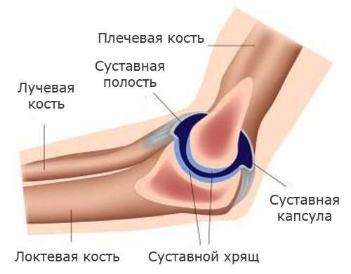 ha a könyökízület fáj, ha meghajlik)