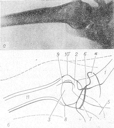 mi deformálja a könyökízület artrózisát