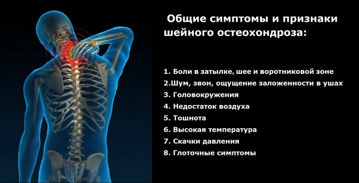 hogyan lehet gyógyítani az oszteokondrozis kenőcsöt