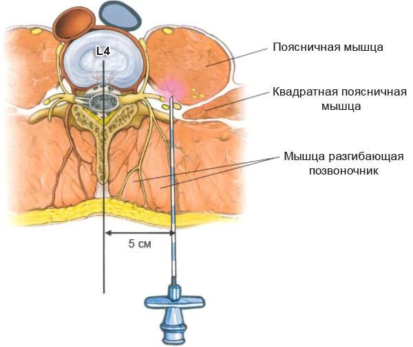 gyógyszerek az ágyéki régió osteochondrozisához