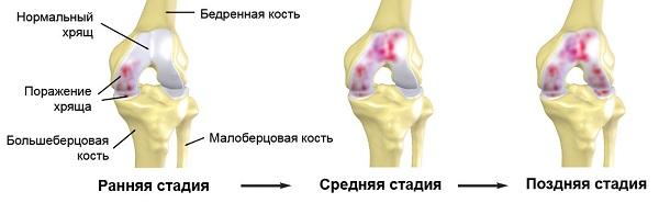 mi a csípőízület 3. fokának artrózisa