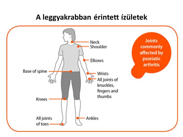 ízületi betegség radiológiai tünetei