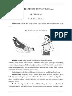 a könyökízület artrózisa 2 fok)