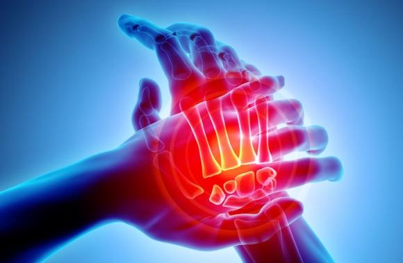ízületi fájdalom onkológia