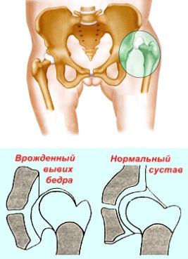 Csípőízületi porckopás és protézis | Kezelés - műtét