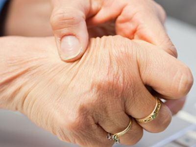 ízületi bőrbetegségek