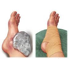 külső boka törés kezelése