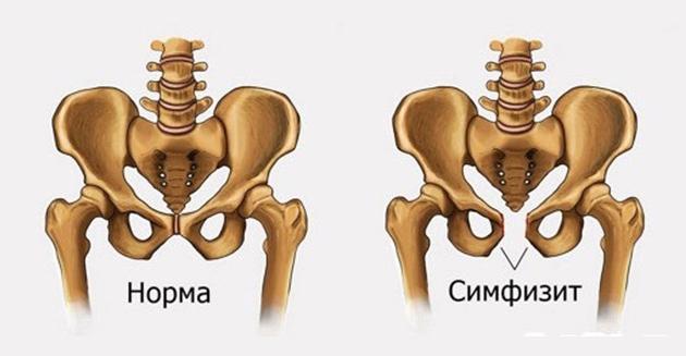ízületi ízületi gyulladás hogyan kell kezelni ízületi helyettesítő fájdalom fóruma