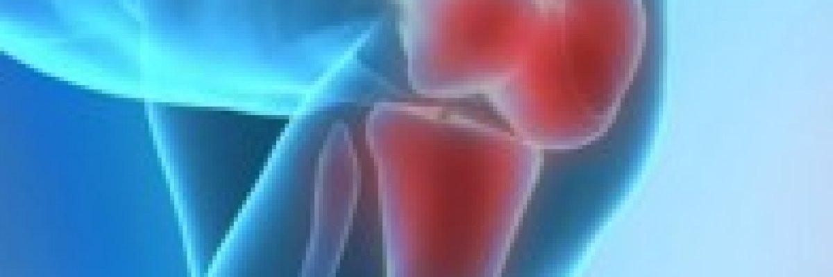 ízületi fájdalom hematológia)