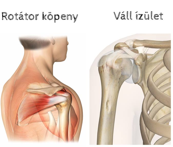 deformáló ízületi műtéti kezelés)