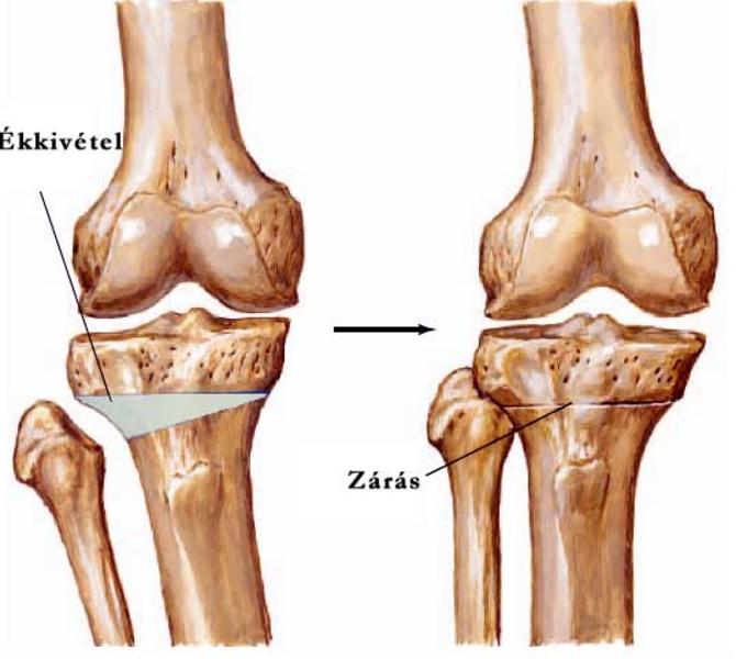 a térd kenőcsének arthroso-arthritis)
