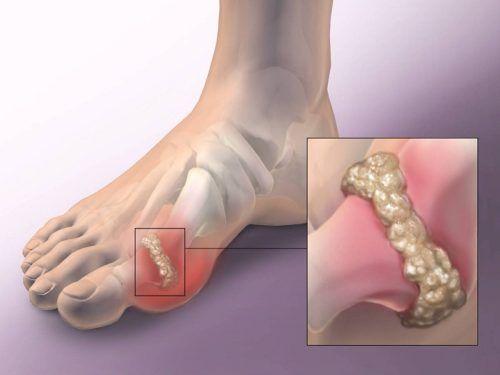 a lábujj ízületi gyulladásának tünetei