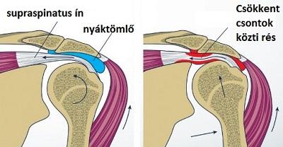 a jobb vállízület kezelésének impingement szindróma)