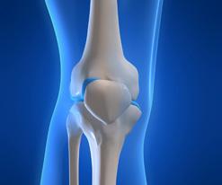 térd artrózis egy tinédzserben