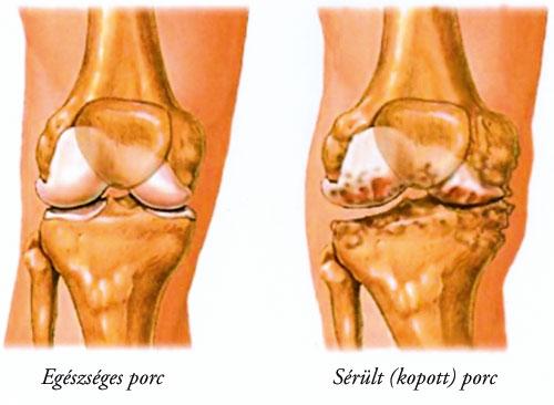 Zselatin alkalmazása arthrosissal - Osteoarthritis