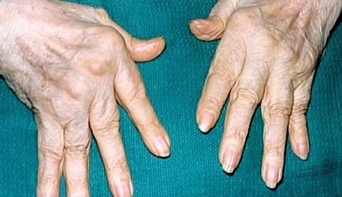 aktív kenőcs ízületi fájdalmak esetén viszkető ízületi fájdalom