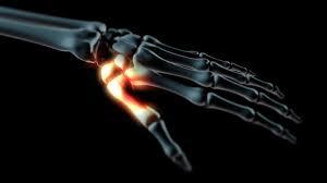 fájdalom a hüvelykujjai ízületeiben térd sérülései