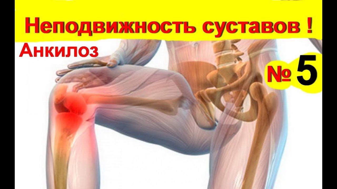 ízületek és ízületek fájdalmainak gyógyszere lábfájdalom a csontról az ízületből