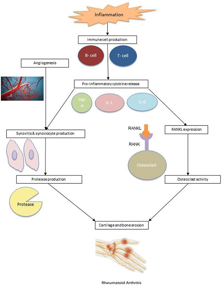 rheumatoid arthritis pathogenesis review a vállízület artrózisos kezelése diprospannal