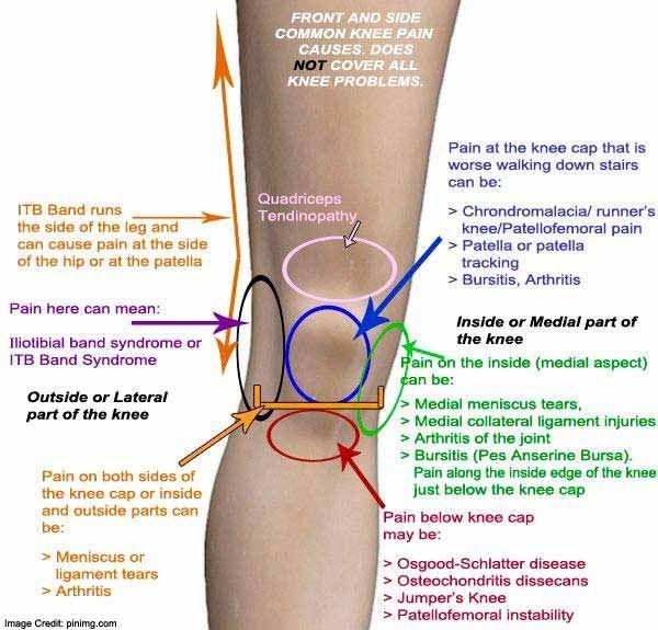 a térdízület oldalsó ragasztásainak törésének kezelése mi a különbség a térdízület artrosis és a gonarthrosis között