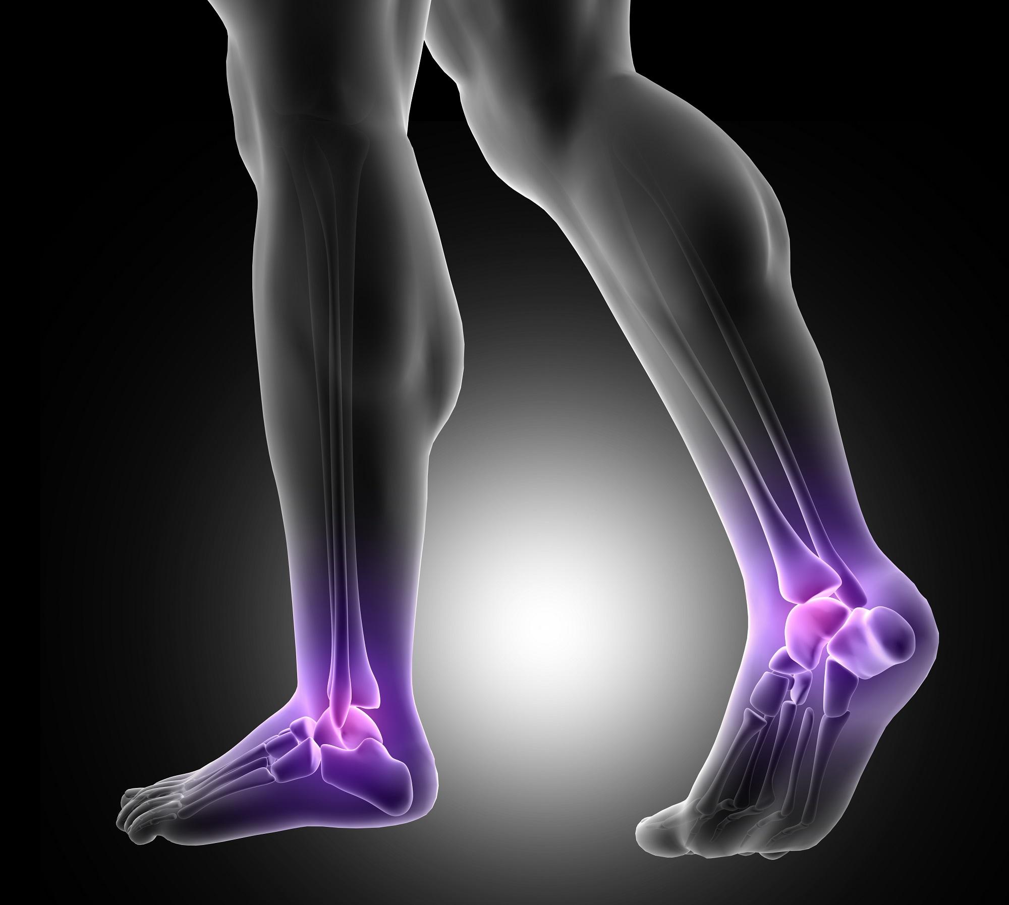 fáj a jobb csípőízületben a térdízület külső oldalsó ligamentuma